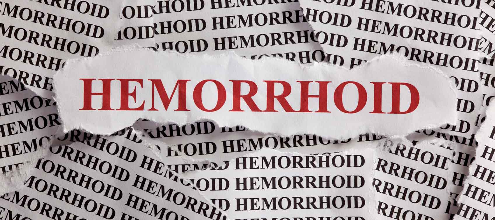 All About Hemorrhoid – Everything Explained
